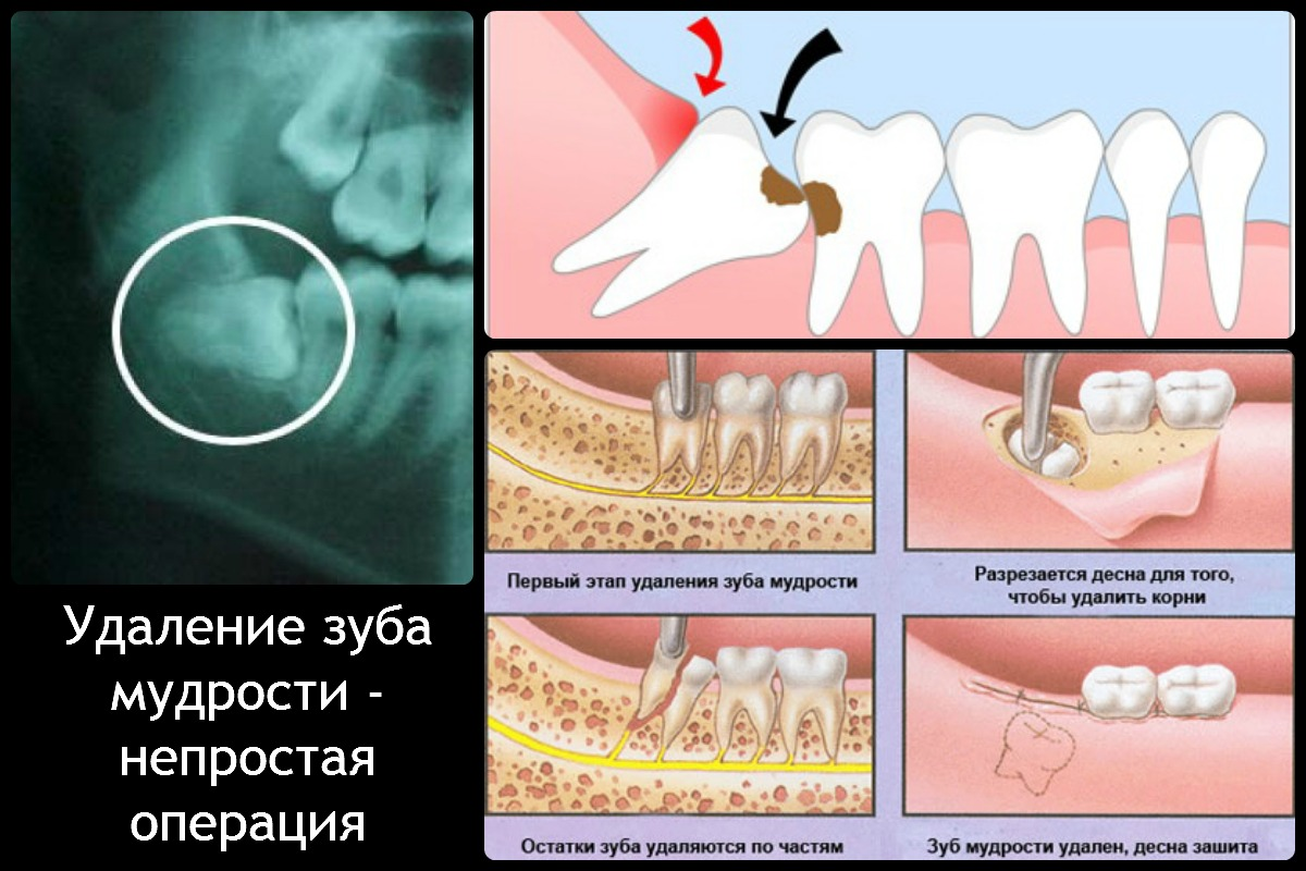 После вырывания зуба сколько нельзя есть