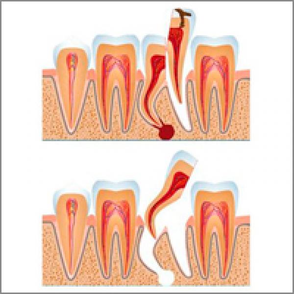 После удаления молочного зуба сколько нельзя есть