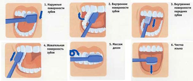Все для чистки зубов в домашних условиях 422